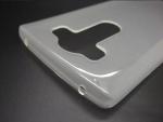 LG G4 Pro case