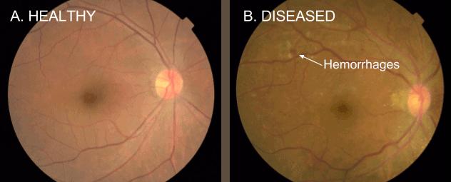 google-diabetic-blindness-example