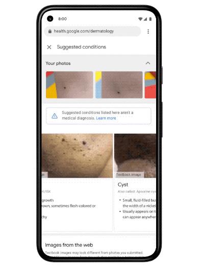 Google AI Dermatology
