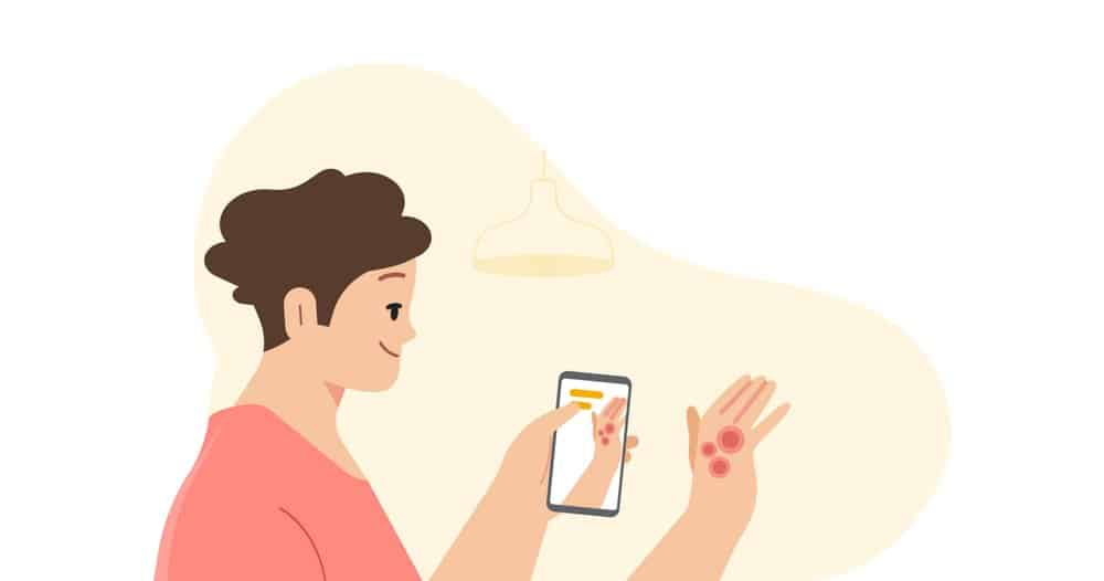 Google Dermatology Assist Tool Identifies Common Skin Conditions